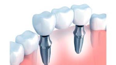 Ilustração de uma prótese dentária